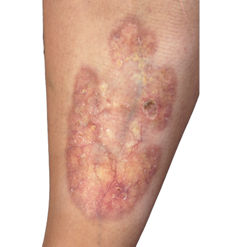 necrobiosis lipoídica